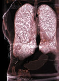 Lungs, CT Stock Images