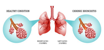 Lungs, the disease is bronchitis Stock Photo