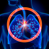 Lungs Foreign Object - inhaled or swallowed Stock Photography