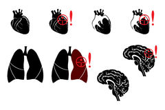 Lungs,heart and brain. Illustration of pneumonia, heart attacks and stroke Stock Photos