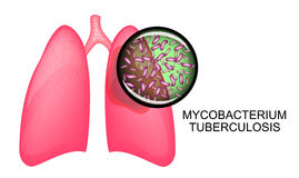 LUNGS OF TB PATIENTS. KOHA Stock Photos