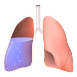 Lungs with water Stock Images