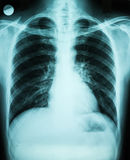 Lungs X-Ray Stock Photography