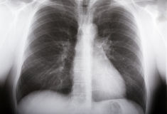 Lungs xray. Xray picture of human male lungs Stock Photography