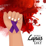Lupus Day Stock Photo