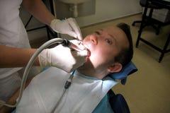 Lustro dental do dente Dentes que limpam, higiene dental O dentista é lustro dos dentes pacientes com a escova dental macia foto de stock royalty free