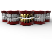 Luxury denture concept Royalty Free Stock Image