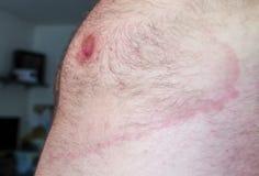 Lyme borreliosis - infectious disease Stock Photography