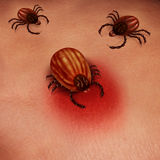 Lyme Disease Human Tick Stock Photo