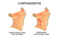 Lymphadénite inflammation des ganglions lymphatiques photographie stock libre de droits