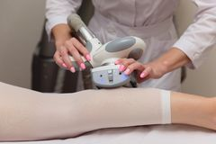 Lymphatic drainage massage LPG apparatus process. Woman in white suit getting anti cellulite massage in a beauty SPA salon. LPG, royalty free stock image