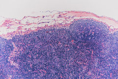 Lymphknotenhund der Biologie abstrakter Zell Lizenzfreie Stockfotos