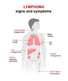 Lymphoma. Signs and symptoms Royalty Free Stock Images