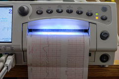 Máquina del ECG Imagen de archivo