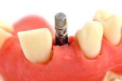 Mâchoire et implant Photo stock