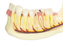 Mâchoire humain modèle avec des dents sur le fond blanc Images libres de droits
