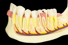 Mâchoire humain modèle avec des dents sur le fond noir photos stock
