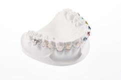 Mâchoire inférieure dentaire photographie stock