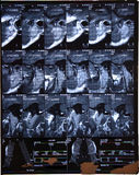 Mâchoire IRM commun photo stock