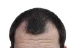 Mâle avec des symptômes de perte des cheveux sur le fond blanc Photos libres de droits