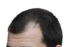 Mâle avec des symptômes de perte des cheveux sur le fond blanc Photos stock