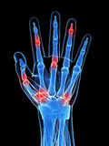 Mão artrítica Imagem de Stock