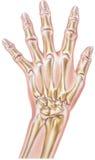 Mão - artrite reumatoide das junções ilustração stock