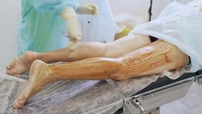 A m?o ascendente pr?xima da enfermeira desinfeta o p? paciente antes da cirurgia da veia varicosa na sala de opera?