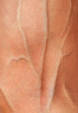 Mão com veias inchadas Imagens de Stock Royalty Free