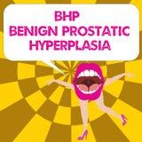 Mão conceptual que escreve mostrando a Bhp a hiperplasia prostática benigna Ampliação Noncancerous da glândula de próstata do tex ilustração do vetor