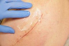 A mão da enfermeira executa a massagem anca Paciente com uma cicatriz longa imagens de stock