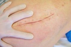 A mão da enfermeira executa a massagem anca Paciente com uma cicatriz longa imagem de stock
