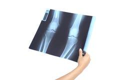Mão da mulher que guardara uma radiografia foto de stock royalty free