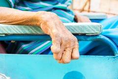 Mão do close up do ancião que sofre da lepra, mão amputada fotos de stock royalty free