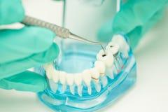 A mão do dentista demonstra para usar a cárie de limpeza da ferramenta dental fotografia de stock