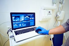 a mão do doutor em luvas azuis guarda um rato em um portátil com a imagem do raio X dental imagens de stock