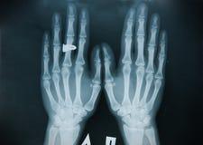 Mão do raio X (dedo) Fotografia de Stock Royalty Free