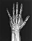 Mão do raio X Foto de Stock