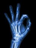 Mão do raio X com símbolo APROVADO Imagens de Stock Royalty Free