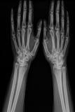 Mão do raio X do homem com artrite Imagem de Stock
