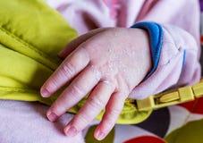 Mão dos neonatos Foto de Stock Royalty Free