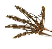 Mão dourada da anatomia Fotos de Stock Royalty Free