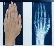 Mão esquerda do retrato do raio X Imagens de Stock Royalty Free