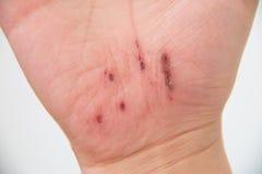 Mão ferida Imagem de Stock