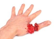 Mão humana artificial com dedo cortado foto de stock royalty free