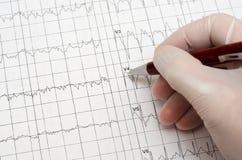 Mão na luva médica que guarda uma pena de esferográfica electrocardiogram imagem de stock royalty free