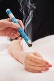 Mão que aplica a vara do moxa Fotografia de Stock Royalty Free