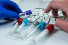 Mão que veste as luvas azuis que guardam garrafas para as amostras usadas nos hospitais ou na medicina para amostras de sangue em fotos de stock