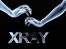 Mãos 6 do raio X Foto de Stock