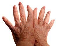 Mãos artríticas Imagens de Stock Royalty Free